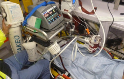 Ecmo: Extracorporeal Support Team - Supporto Extracorporeo.