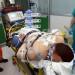 Trasferimento Urgente di Paziente in Grave Insufficienza Respiratoria.